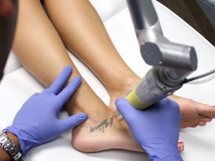 Image result for Things You Need To Know Before Tattoo Removal